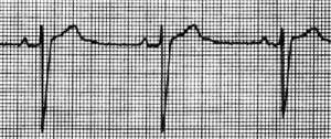 electrocardiograma_bradicardia